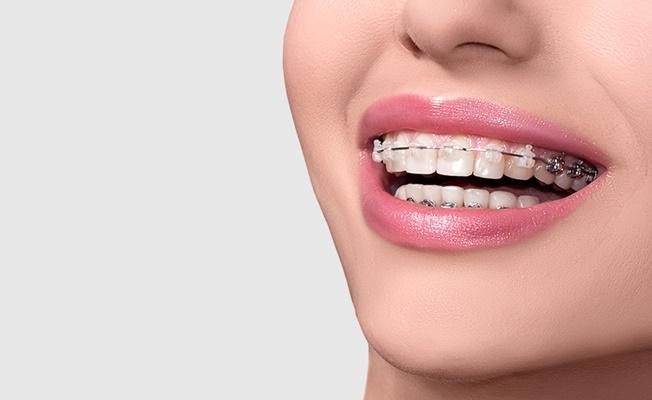 Diş Telinde Bilinmeyenler